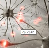 Епилепсия | Болести и лечение |здравето.com