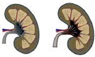 Пиелонефрит-3-Болести и лечение-здравето.com