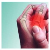Синдром на райтер - Болести и Лечение - здравето.com